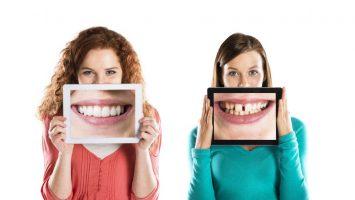 Zkažené zuby v těhotenství